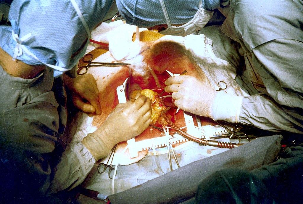 1024px-Coronary_artery_bypass_surgery_Image_657B-PH