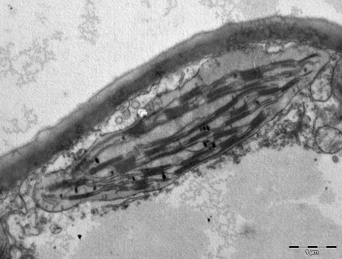Chloroplast_in_leaf_of_Anemone_sp_TEM_12000x.png